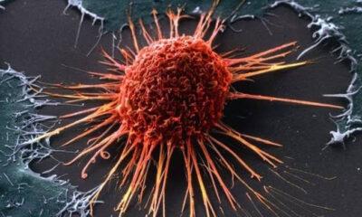 Kebiasaan Buruk yang Bisa Meningkatkan Risiko Terkena Kanker